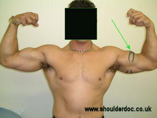 steroid muscle tear