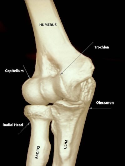 Radial head fracture - ElbowDoc